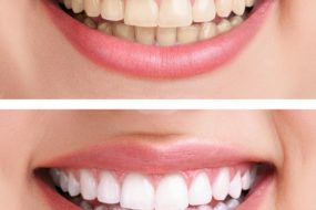 Zdrowe, białe zęby