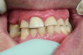 Starcie i braki zębów