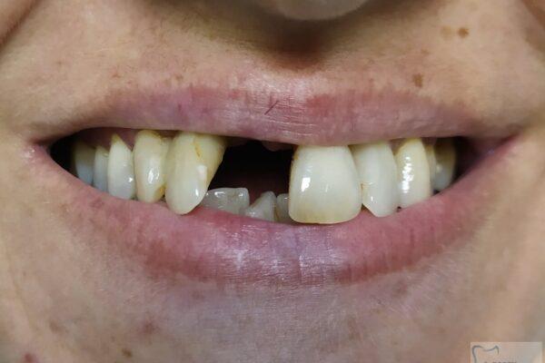 Utrata zęba siecznego