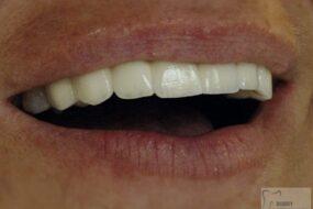 Uzupełnienie braku i poprawa estetyki pozostałych zębów